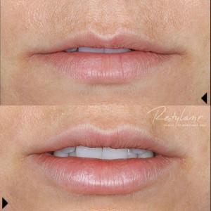 Administered by Cosmetic Dermatologist
